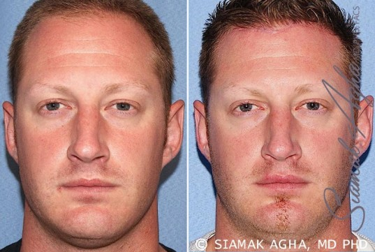 orange-county-forehead-reduction-patient-2-front