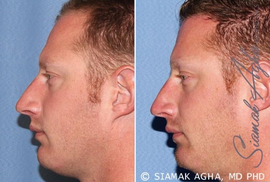 orange-county-forehead-reduction-patient-2-left (1)