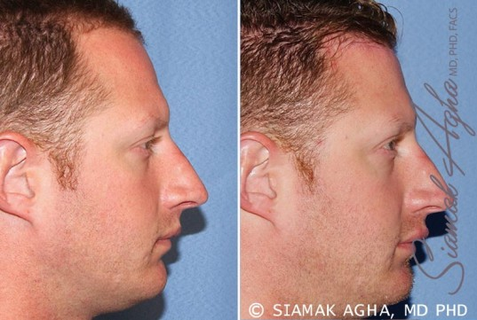 orange-county-forehead-reduction-patient-2-right (1)