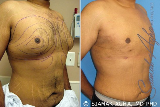 orange-county-liposuction-patient-1-front-right