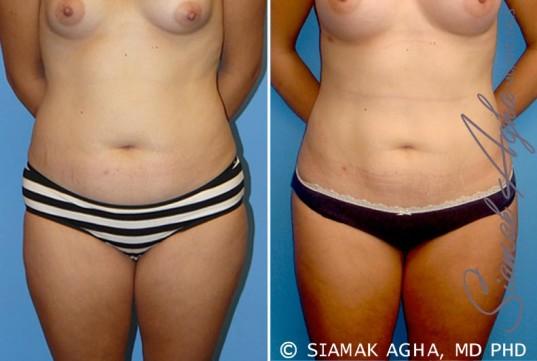 orange-county-liposuction-patient-10-front