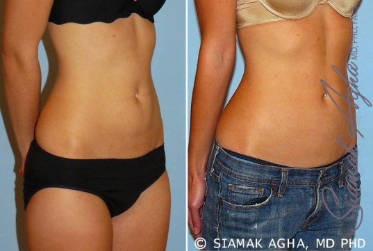 orange-county-liposuction-patient-11-front-right