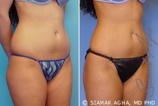 orange-county-liposuction-patient-12-front-right