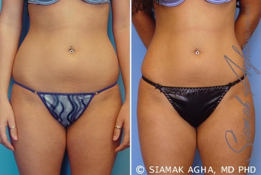 orange-county-liposuction-patient-12-front