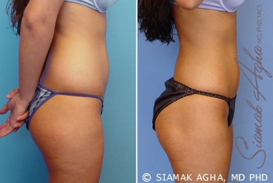 orange-county-liposuction-patient-12-right
