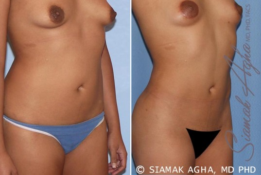 orange-county-liposuction-patient-13-front-right