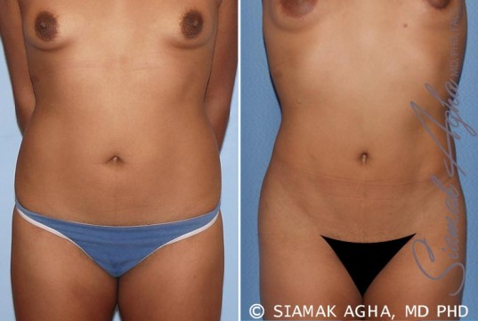 orange-county-liposuction-patient-13-front