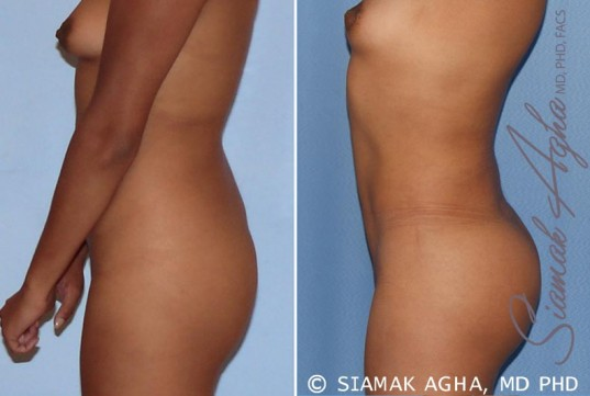 orange-county-liposuction-patient-13-left