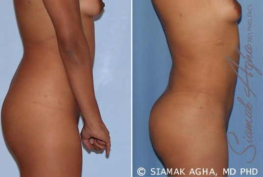 orange-county-liposuction-patient-13-right