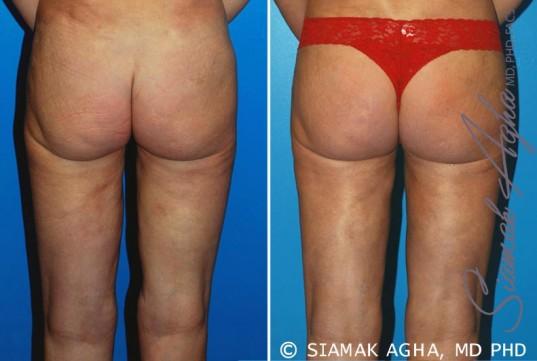 orange-county-liposuction-patient-15-back