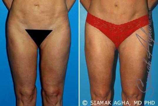 orange-county-liposuction-patient-15-front