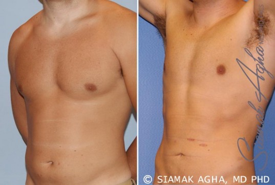 orange-county-liposuction-patient-16-front-left