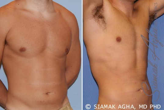 orange-county-liposuction-patient-16-front-right