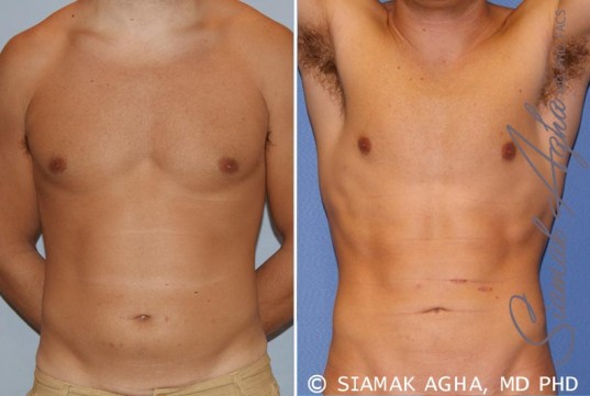 orange-county-liposuction-patient-16-front