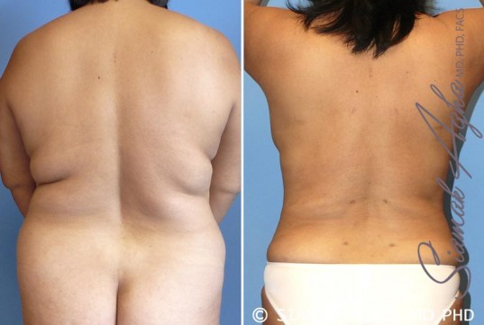 orange-county-liposuction-patient-17-back