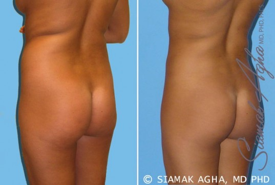orange-county-liposuction-patient-2-back-left