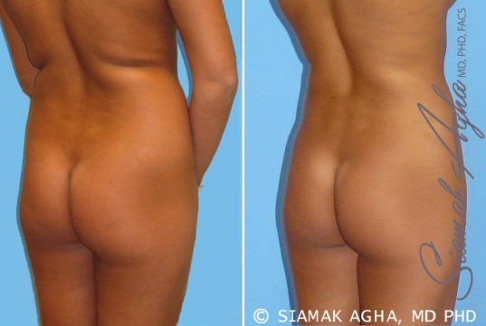 orange-county-liposuction-patient-2-back-right