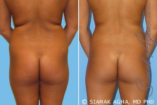 orange-county-liposuction-patient-2-back