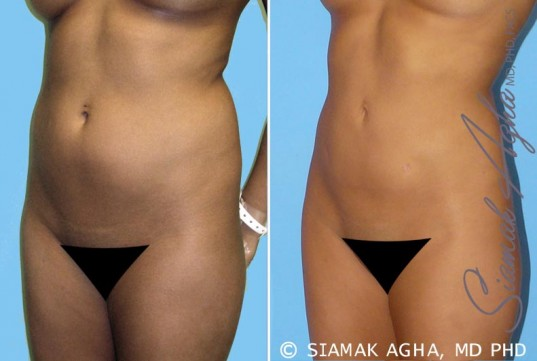 orange-county-liposuction-patient-2-front-left