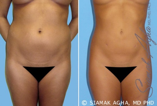 orange-county-liposuction-patient-2-front