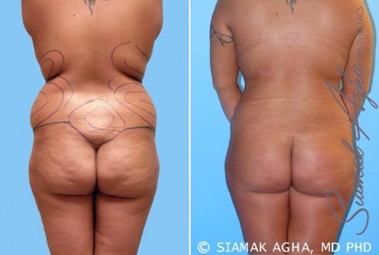 orange-county-liposuction-patient-4-back