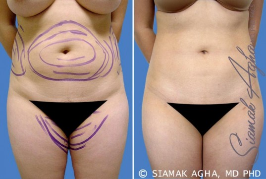orange-county-liposuction-patient-5-front