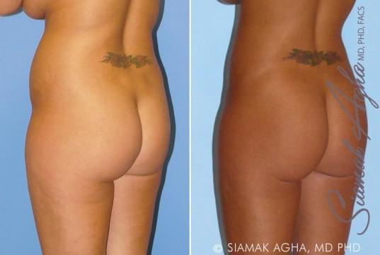 orange-county-liposuction-patient-8-back-left