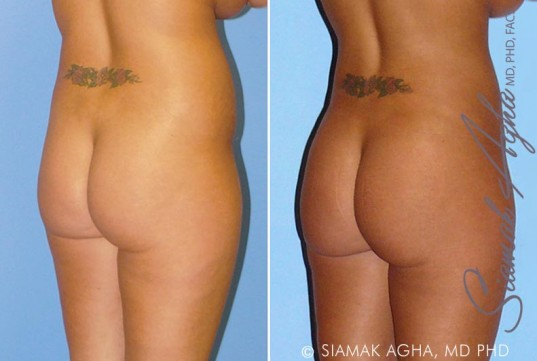 orange-county-liposuction-patient-8-back-right