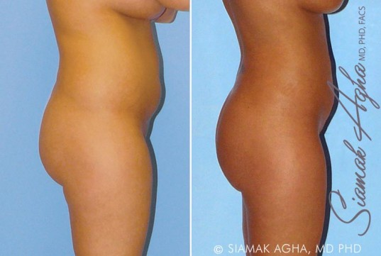 orange-county-liposuction-patient-8-right