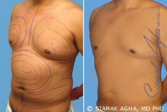 orange-county-liposuction-patient-9-front-left