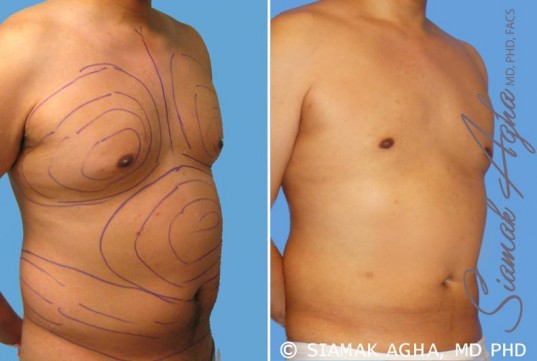 orange-county-liposuction-patient-9-front-right