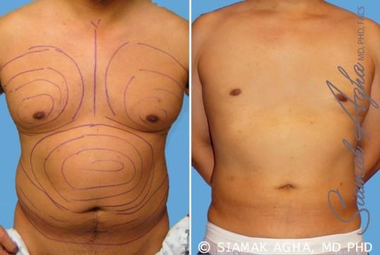orange-county-liposuction-patient-9-front