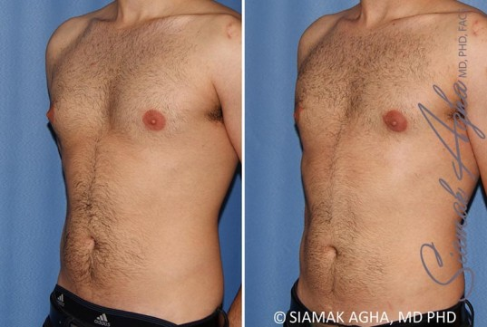 orange-county-male-breast-reduction-patient-10-front-left