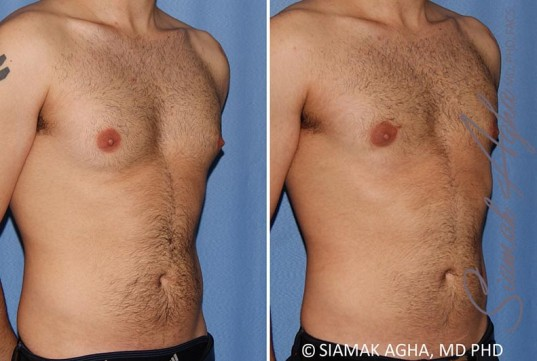 orange-county-male-breast-reduction-patient-10-front-right