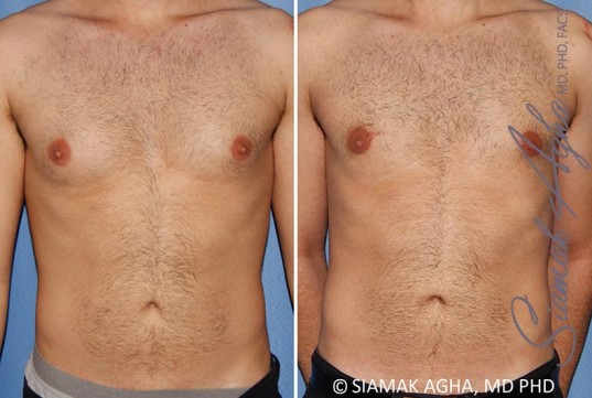 orange-county-male-breast-reduction-patient-10-front