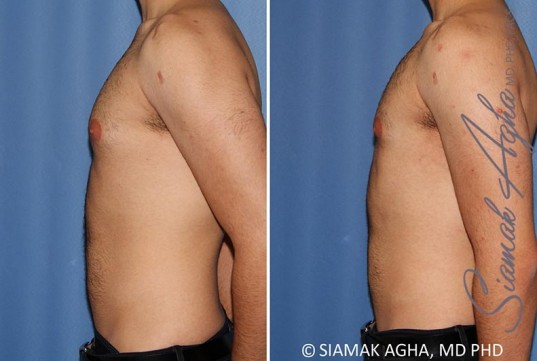orange-county-male-breast-reduction-patient-10-left
