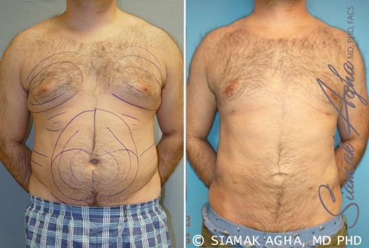 orange-county-male-breast-reduction-patient-2-front