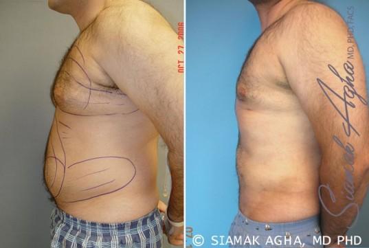 orange-county-male-breast-reduction-patient-2-left