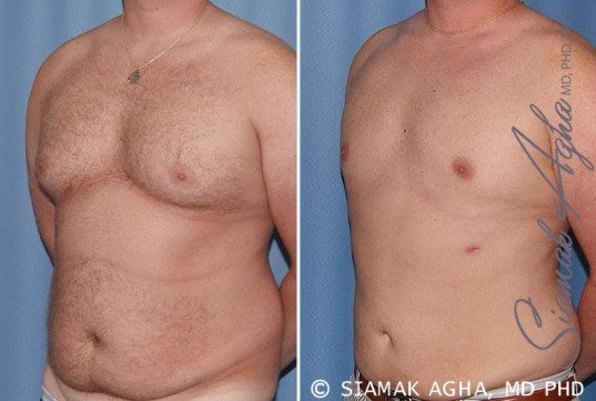 orange-county-male-breast-reduction-patient-5-front-left