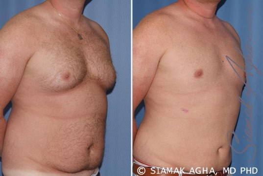 orange-county-male-breast-reduction-patient-5-front-right