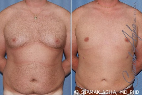 orange-county-male-breast-reduction-patient-5-front