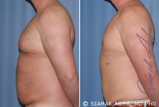 orange-county-male-breast-reduction-patient-5-left