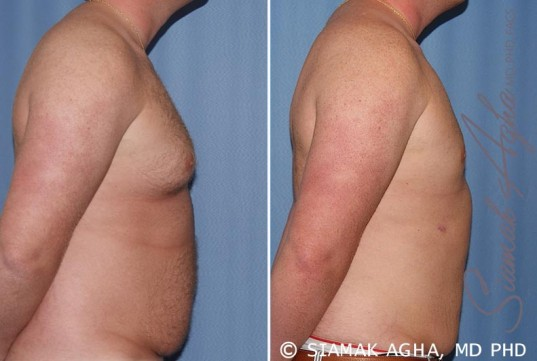 orange-county-male-breast-reduction-patient-5-right