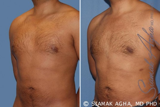 orange-county-male-breast-reduction-patient-6-front-left
