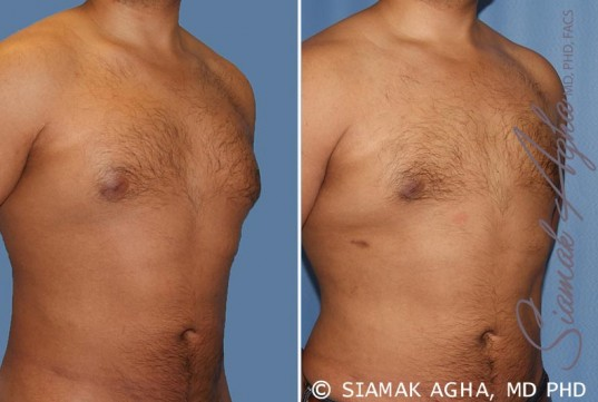 orange-county-male-breast-reduction-patient-6-front-right