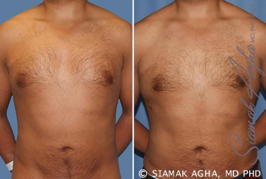 orange-county-male-breast-reduction-patient-6-front