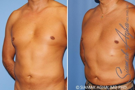 orange-county-male-breast-reduction-patient-8-front-left