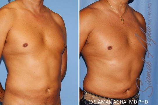 orange-county-male-breast-reduction-patient-8-front-right