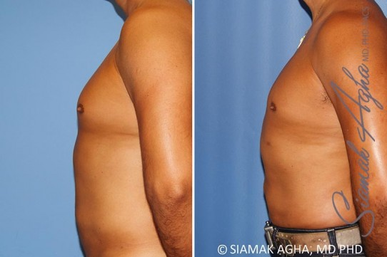 orange-county-male-breast-reduction-patient-8-left