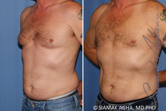 orange-county-male-breast-reduction-patient-9-front-left